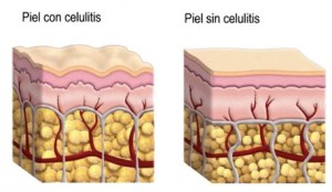 celulitis2